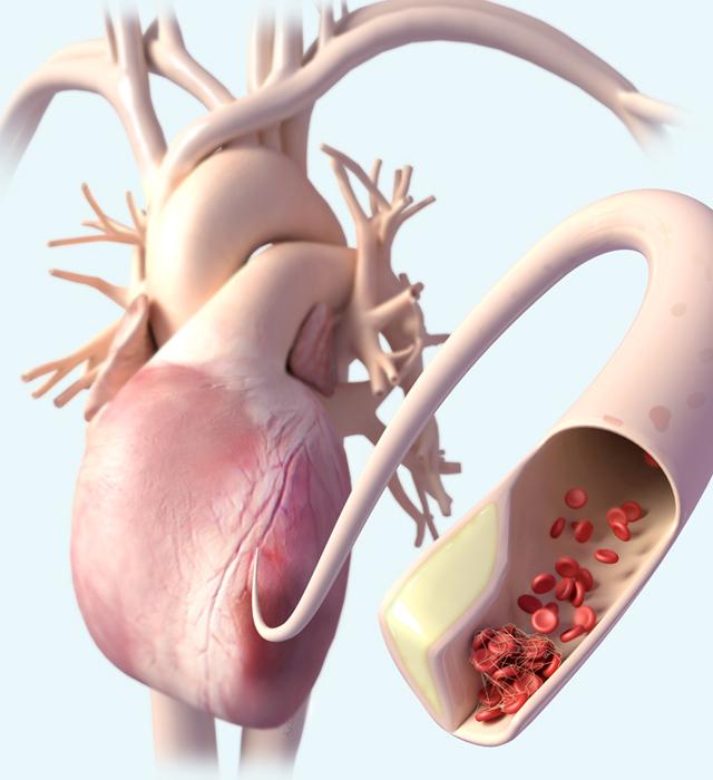 Heart Attack_CMM